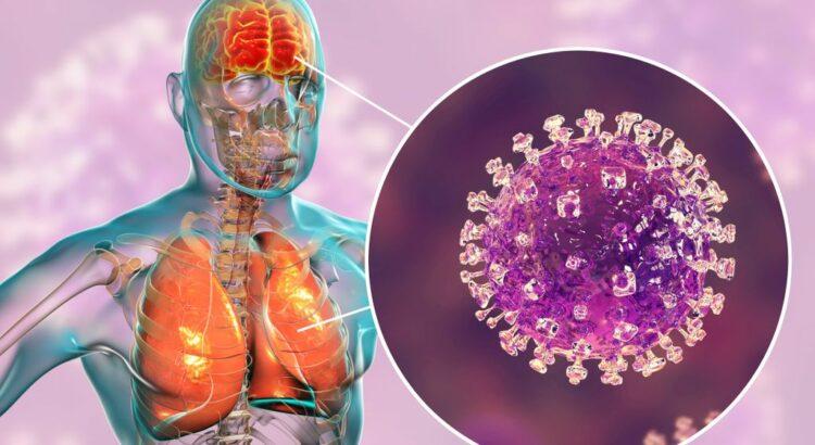 Virus Nipah : quel est ce redoutable virus émergent ?